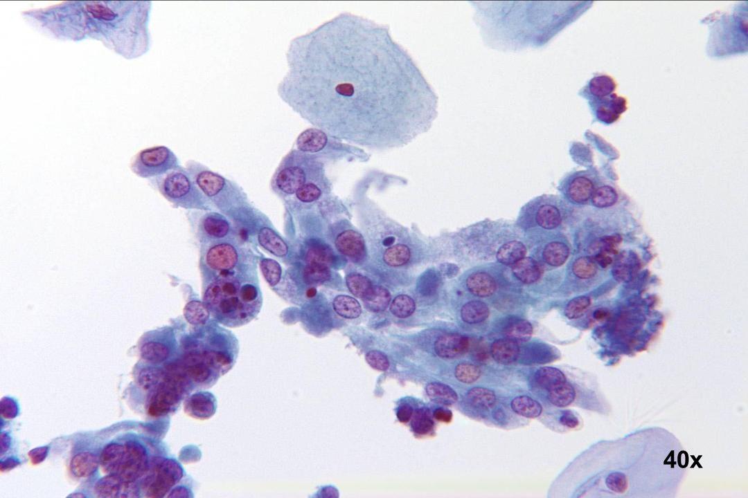Regeneration Flacher Zellverband mit weitem Zytoplasma. Die Kerne sind rund bis oval bei minimalen Größenunterschieden.