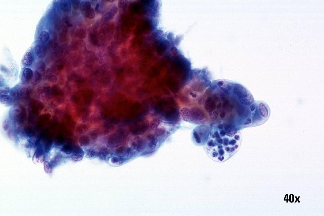 Endozervikales Adenokarzinom