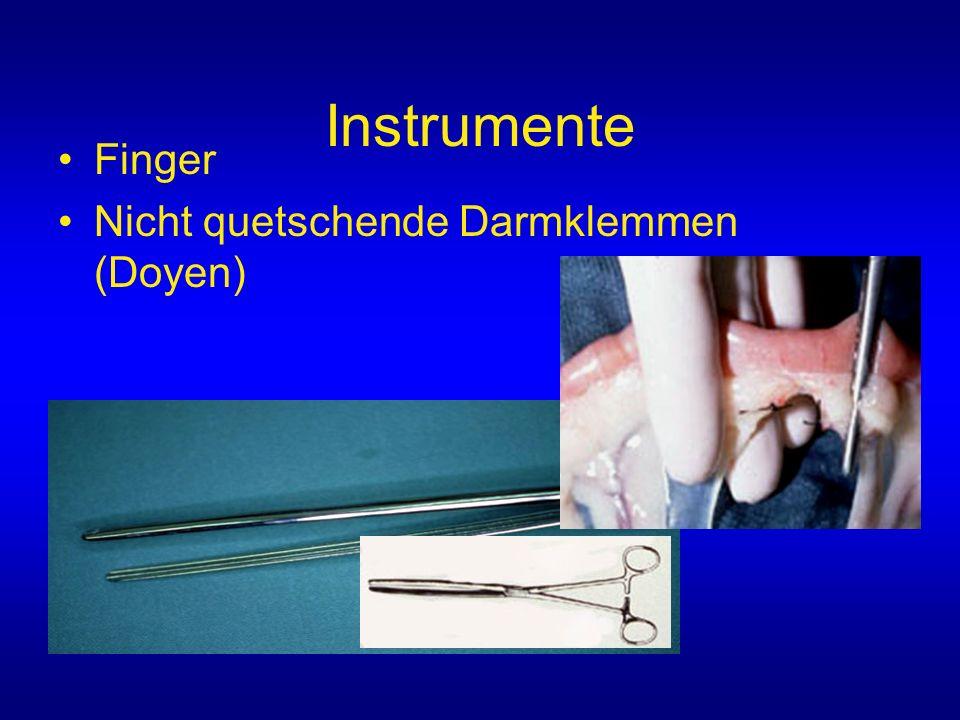 Instrumente Finger Nicht quetschende Darmklemmen (Doyen)