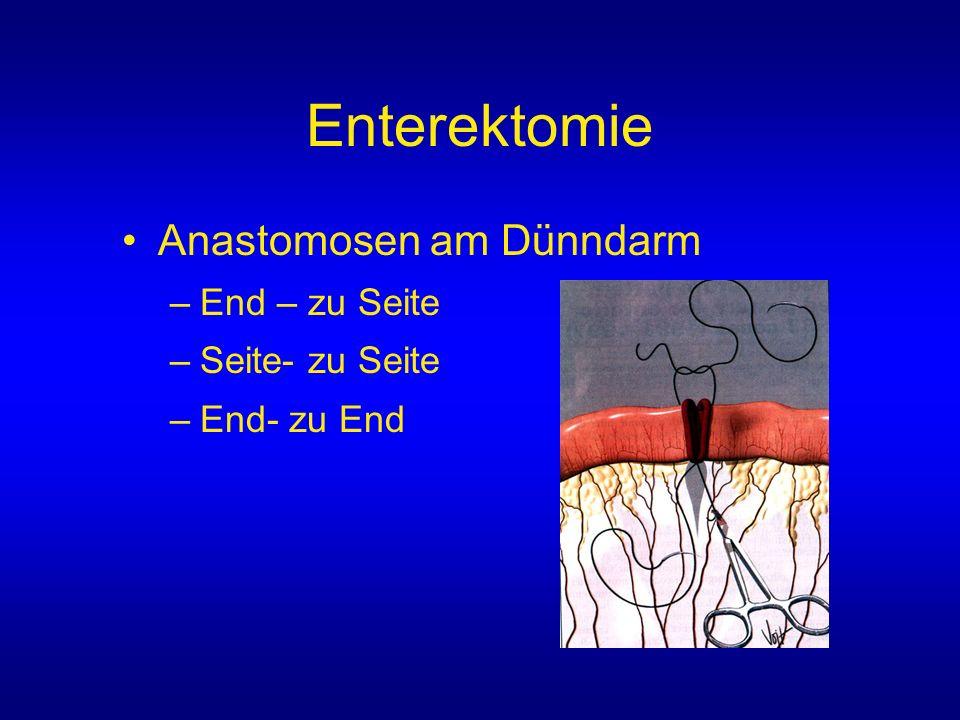 Enterektomie Anastomosen am Dünndarm End – zu Seite Seite- zu Seite