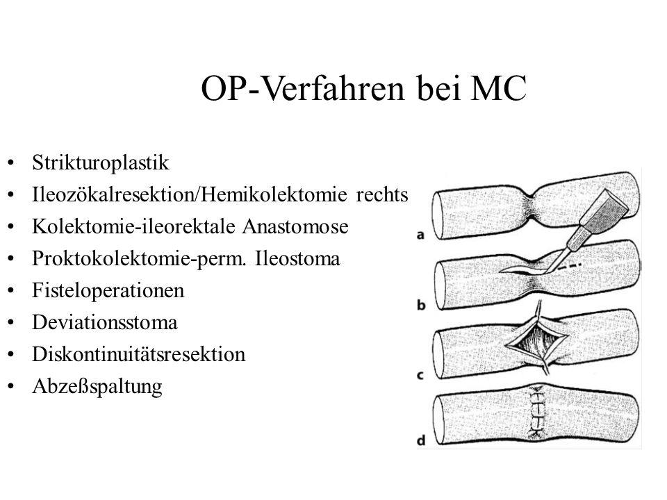 OP-Verfahren bei MC Strikturoplastik