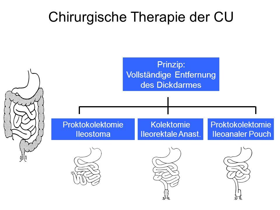 Chirurgische Therapie der CU