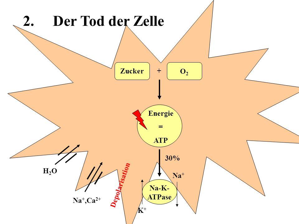 2. Der Tod der Zelle Zucker + O2 Energie = ATP 30% H2O Na+