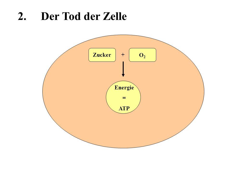 2. Der Tod der Zelle Zucker + O2 Energie = ATP
