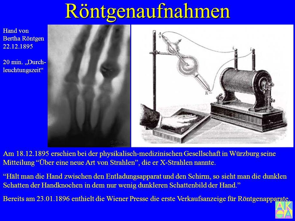"""Röntgenaufnahmen Hand von Bertha Röntgen 22.12.1895. 20 min. """"Durch-leuchtungszeit"""