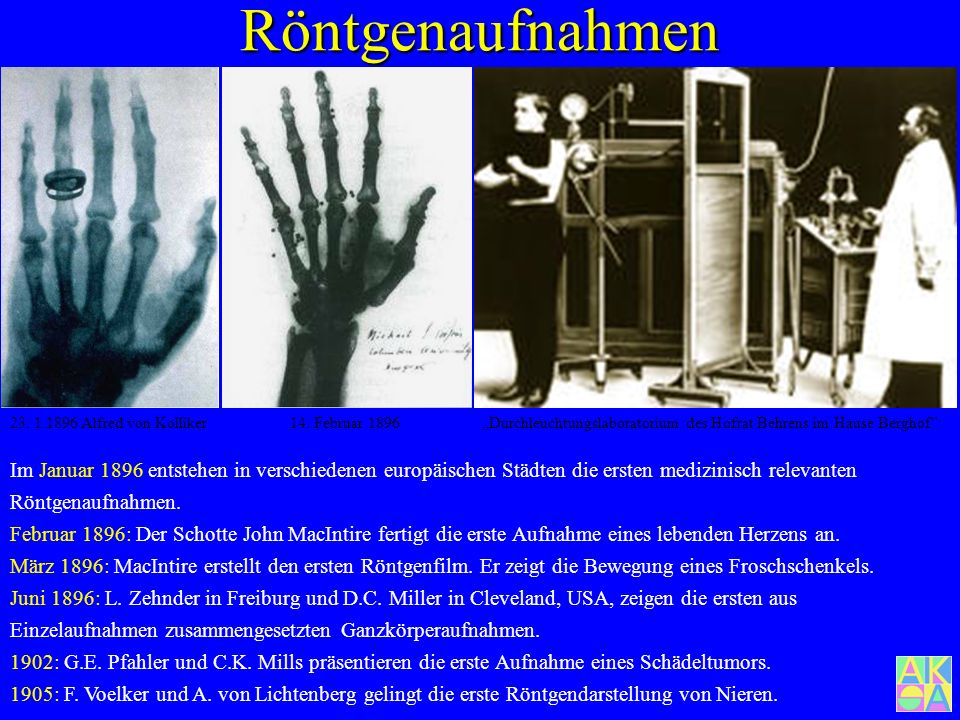 """Röntgenaufnahmen 23. 1.1896 Alfred von Kolliker. 14. Februar 1896. """"Durchleuchtungslaboratorium des Hofrat Behrens im Hause Berghof"""