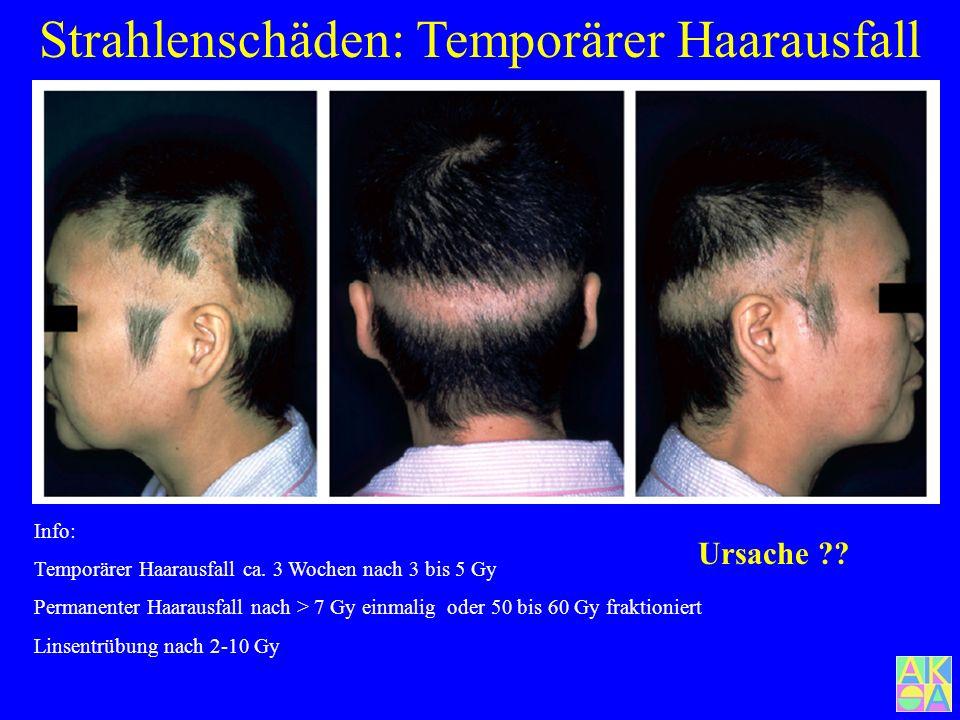Strahlenschäden: Temporärer Haarausfall