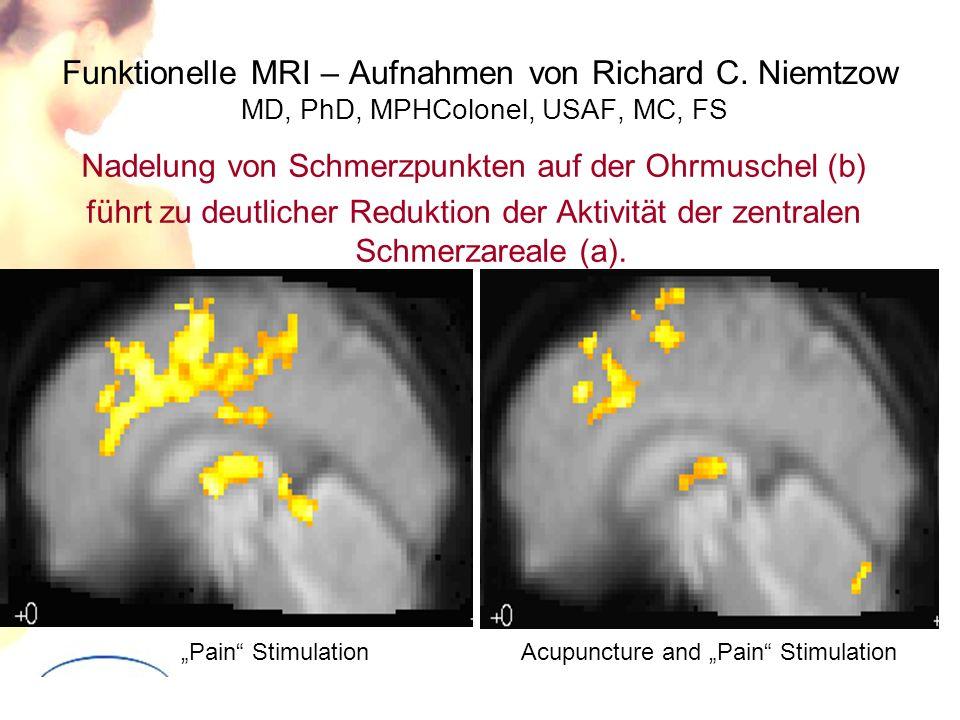 Funktionelle MRI – Aufnahmen von Richard C