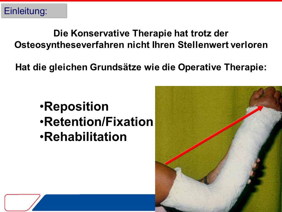 Reposition Retention/Fixation Rehabilitation Einleitung: