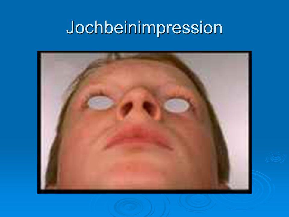 Jochbeinimpression