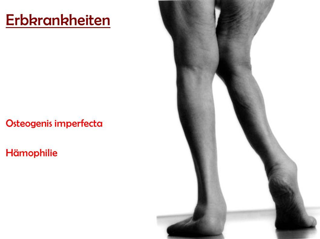 Erbkrankheiten Erbkrankheiten Osteogenis imperfecta Hämophilie