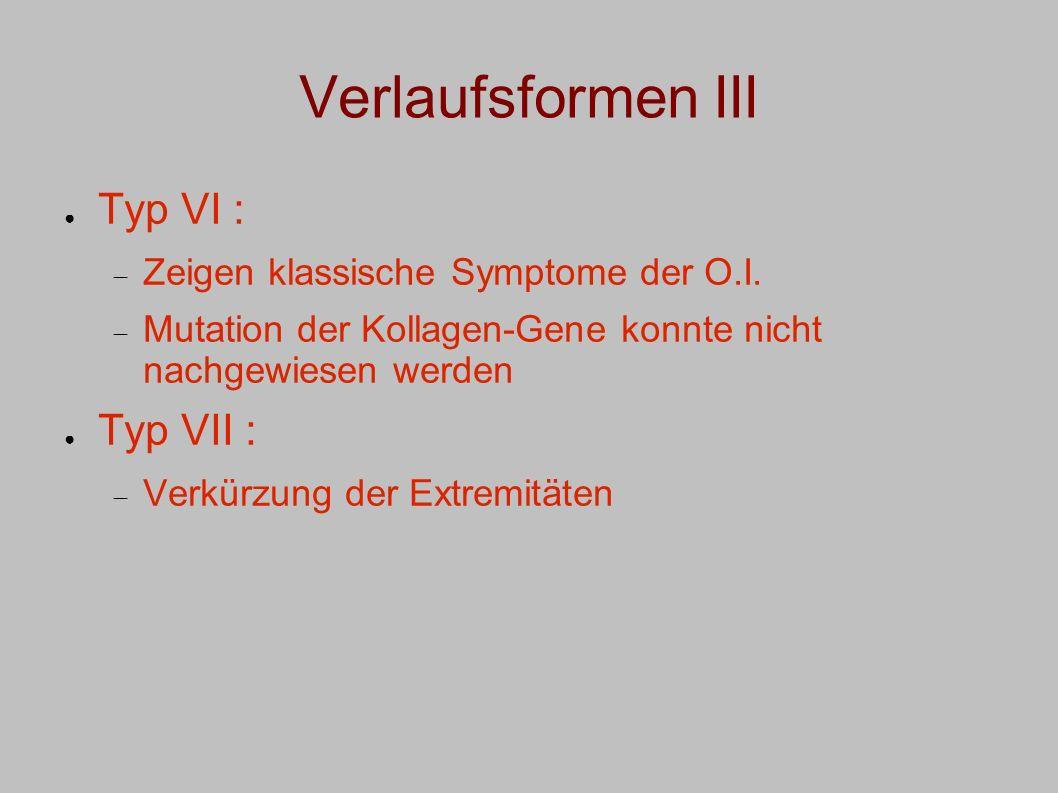 Verlaufsformen III Typ VI : Typ VII :
