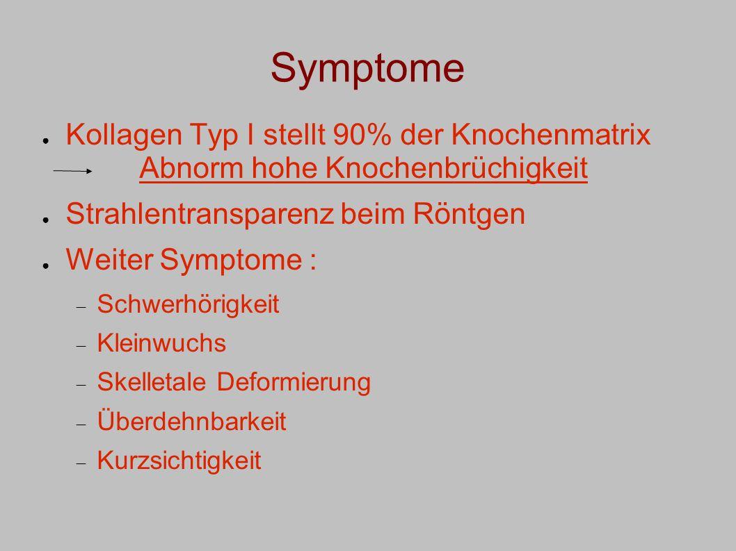 Symptome Kollagen Typ I stellt 90% der Knochenmatrix Abnorm hohe Knochenbrüchigkeit. Strahlentransparenz beim Röntgen.
