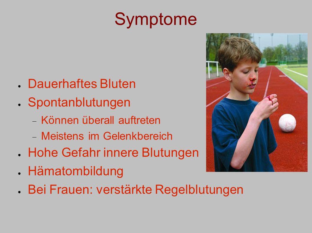 Symptome Dauerhaftes Bluten Spontanblutungen