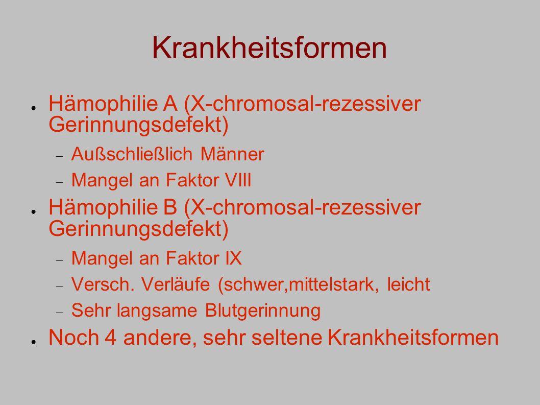 Krankheitsformen Hämophilie A (X-chromosal-rezessiver Gerinnungsdefekt) Außschließlich Männer. Mangel an Faktor VIII.