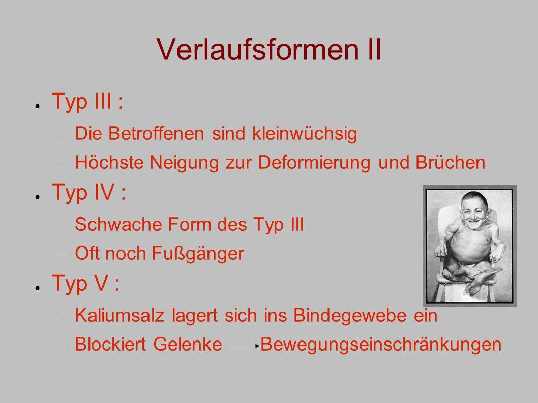 Verlaufsformen II Typ III : Typ IV : Typ V :