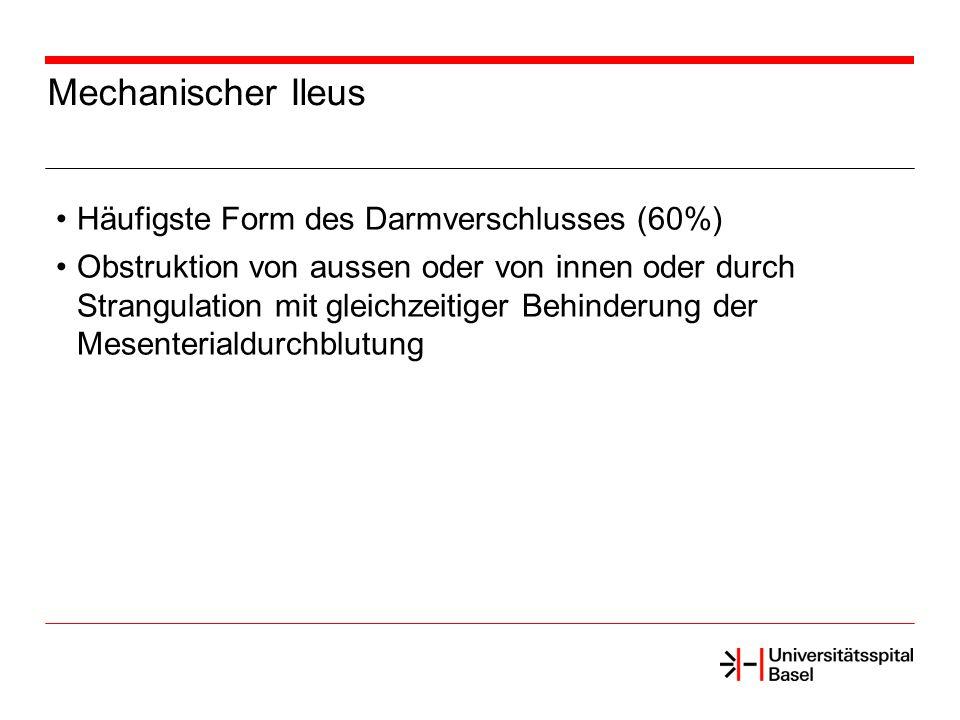Mechanischer Ileus Häufigste Form des Darmverschlusses (60%)