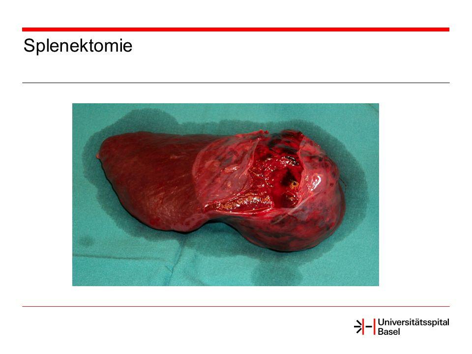 Splenektomie
