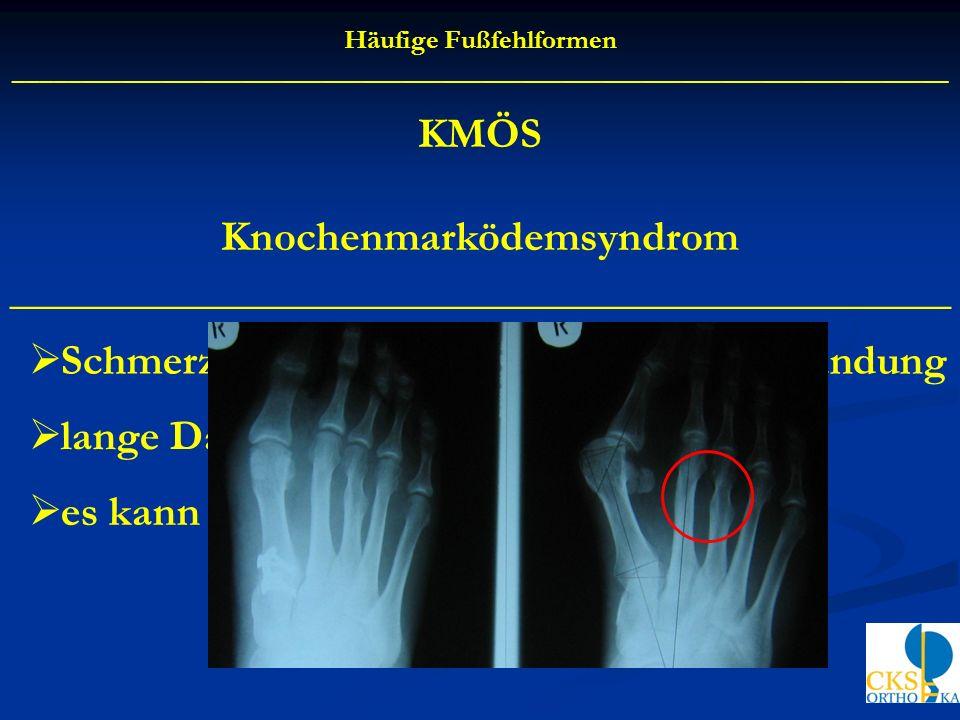 Knochenmarködemsyndrom