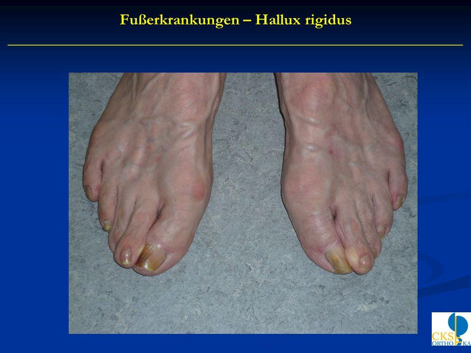 Fußerkrankungen – Hallux rigidus
