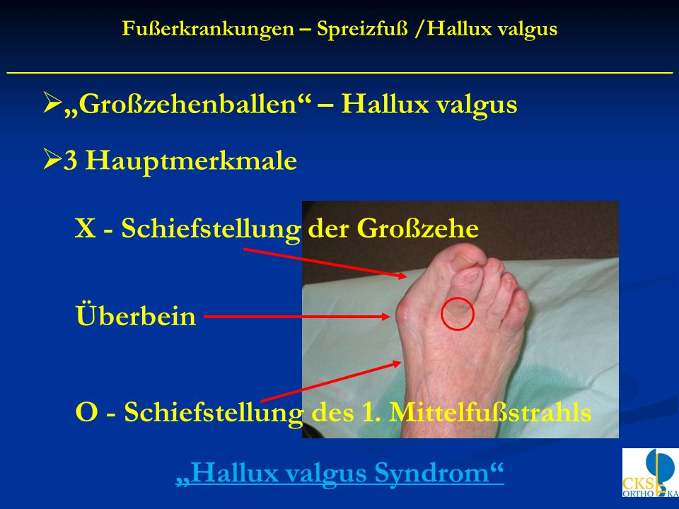 "____________________________________________ ""Hallux valgus Syndrom"
