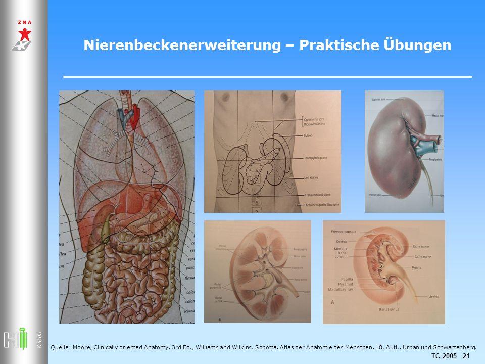 Nierenbeckenerweiterung – Praktische Übungen