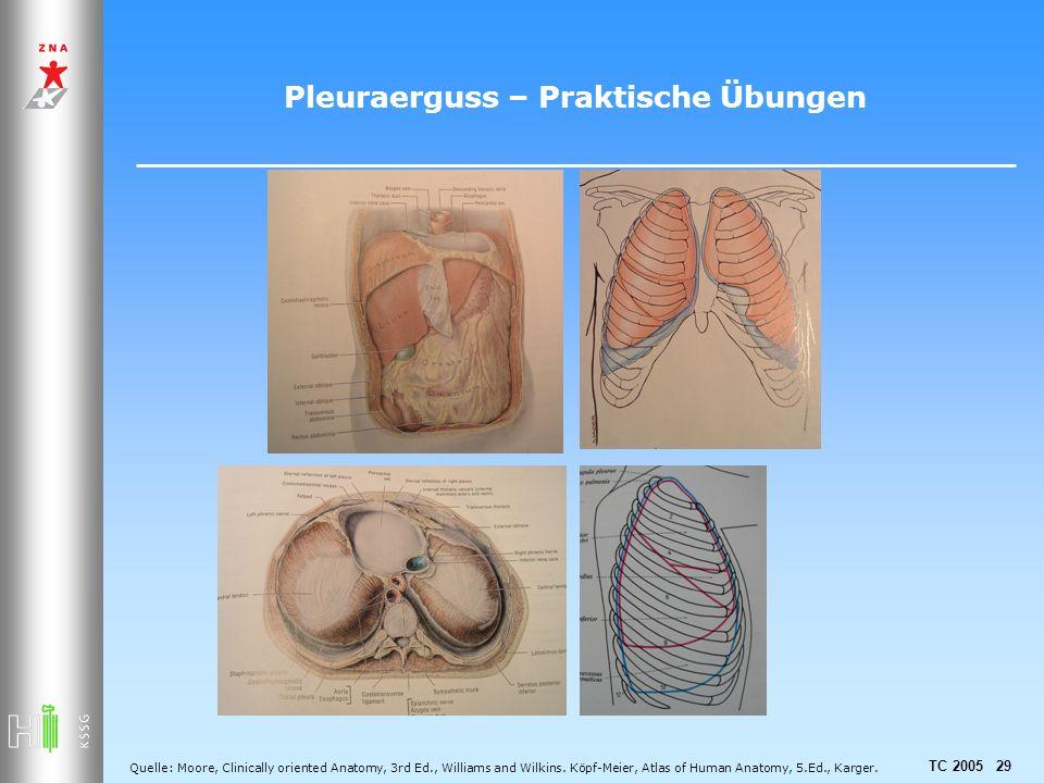 Pleuraerguss – Praktische Übungen