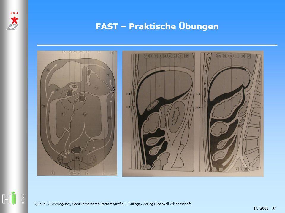 FAST – Praktische Übungen