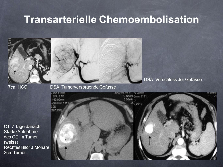 Transarterielle Chemoembolisation
