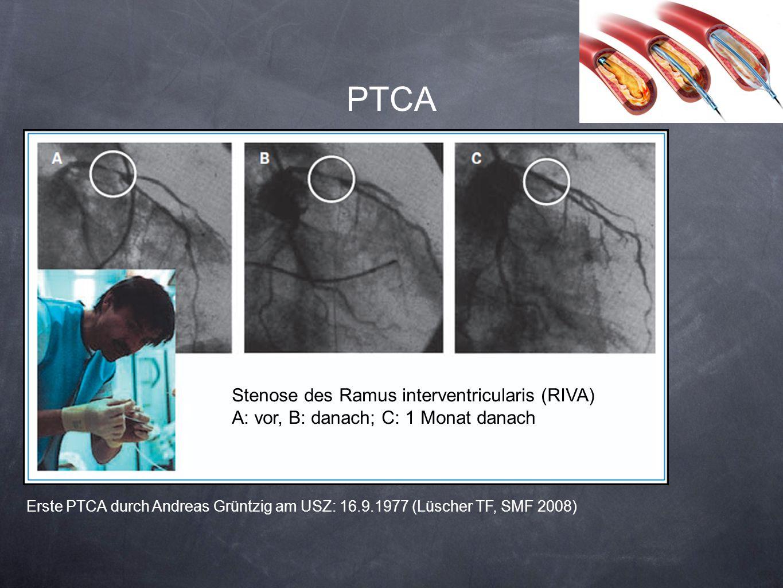 PTCA Stenose des Ramus interventricularis (RIVA)