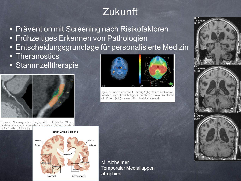 Zukunft Prävention mit Screening nach Risikofaktoren