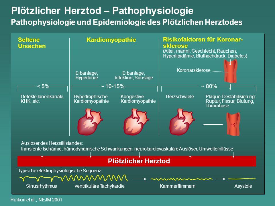 Plötzlicher Herztod – Pathophysiologie