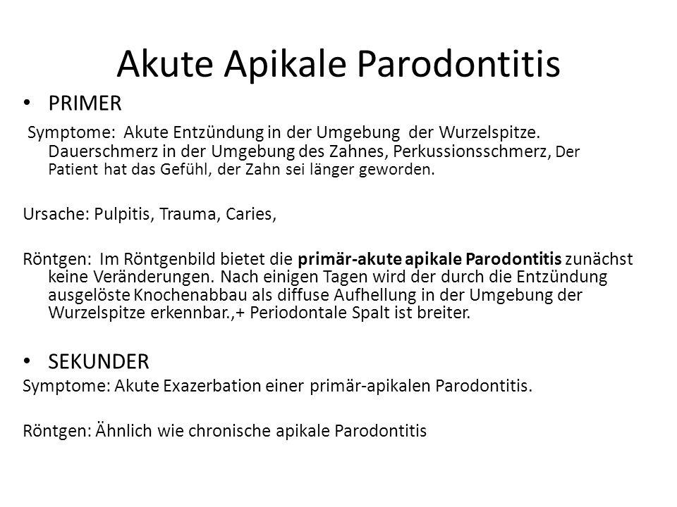 Akute Apikale Parodontitis