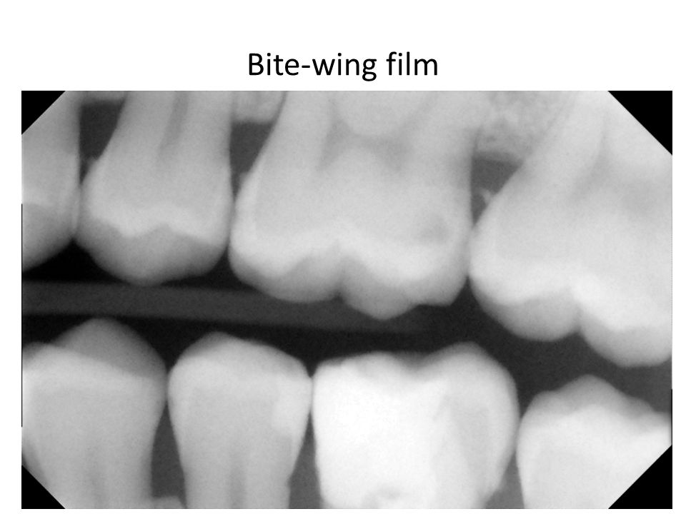 Bite-wing film
