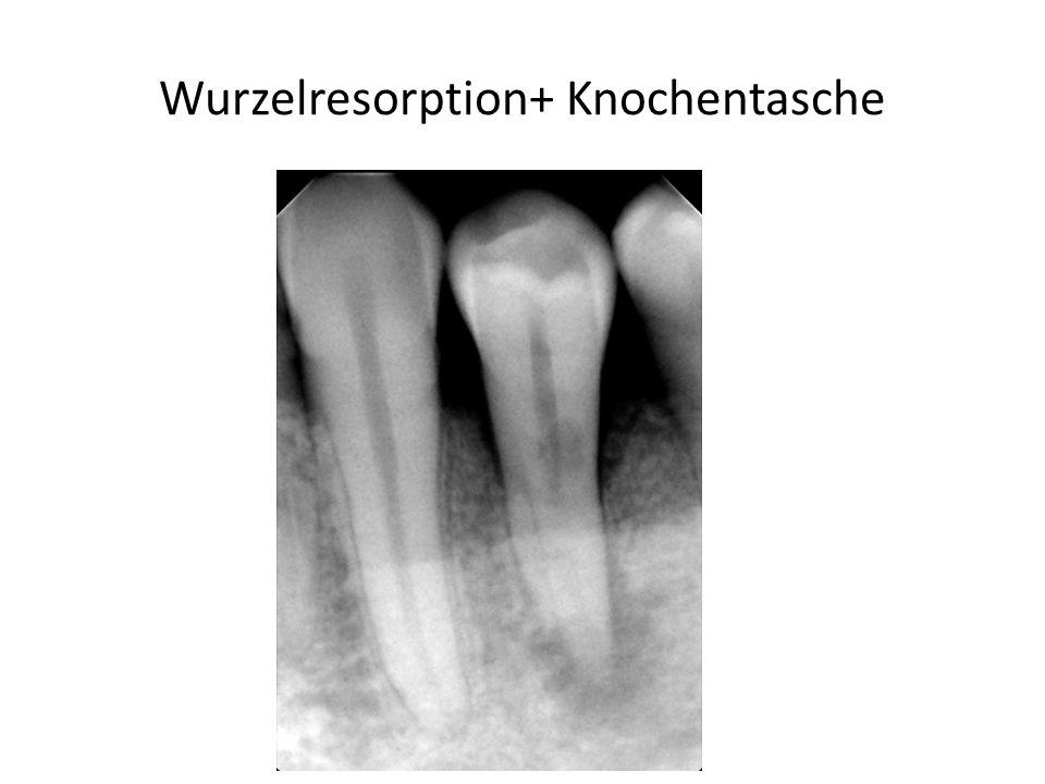 Wurzelresorption+ Knochentasche