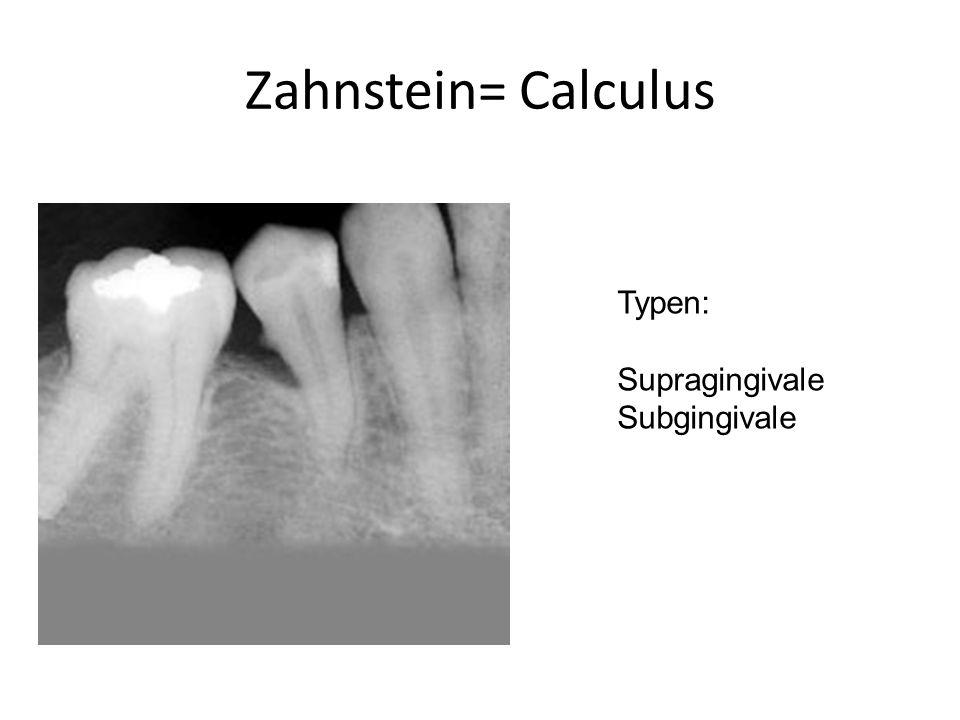 Zahnstein= Calculus Typen: Supragingivale Subgingivale