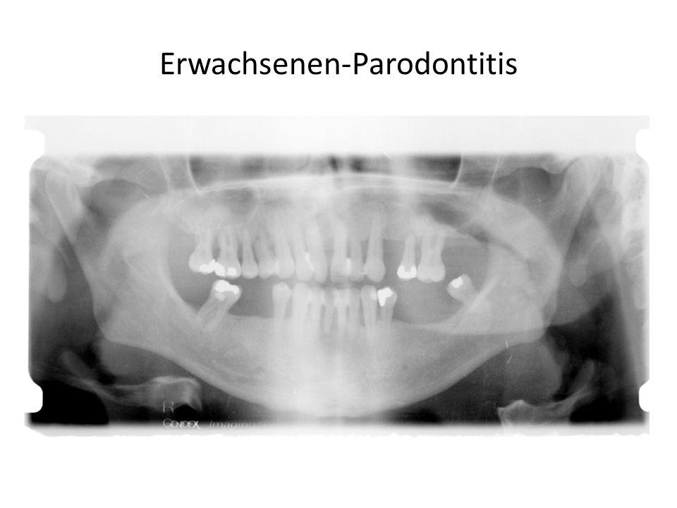 Erwachsenen-Parodontitis