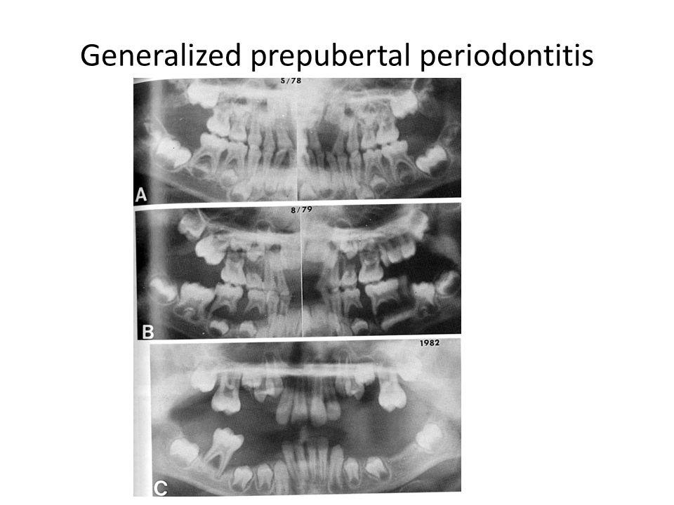Generalized prepubertal periodontitis
