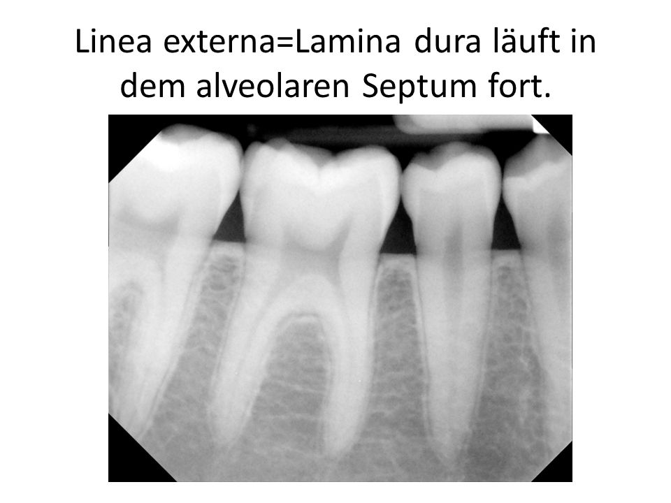 Linea externa=Lamina dura läuft in dem alveolaren Septum fort.