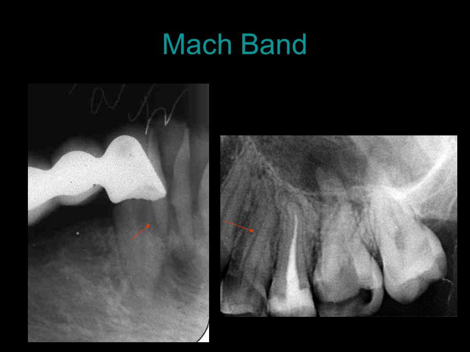 Mach Band