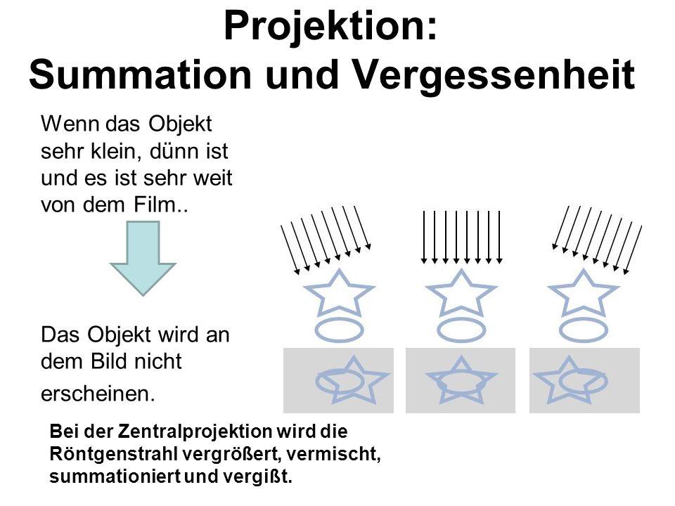 Projektion: Summation und Vergessenheit