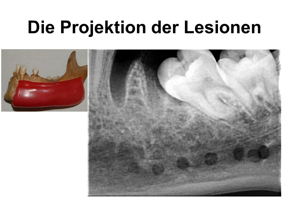 Die Projektion der Lesionen