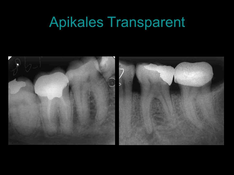 Apikales Transparent
