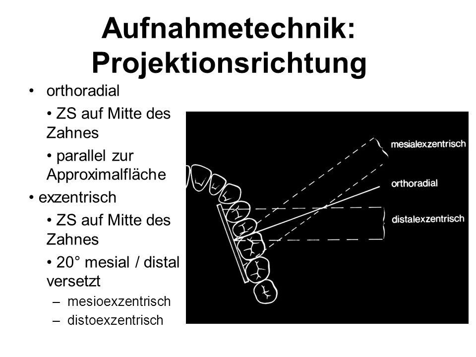 Aufnahmetechnik: Projektionsrichtung