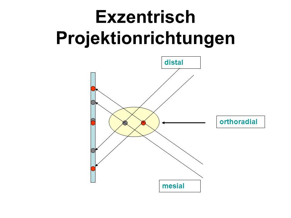 Exzentrisch Projektionrichtungen
