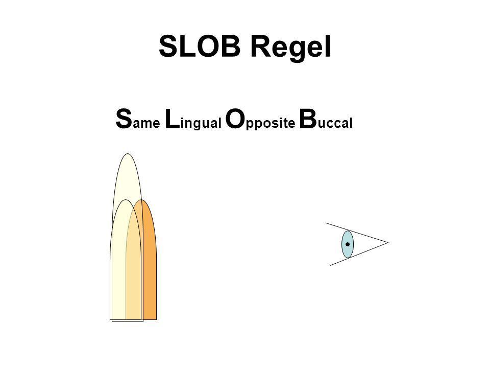 SLOB Regel Same Lingual Opposite Buccal
