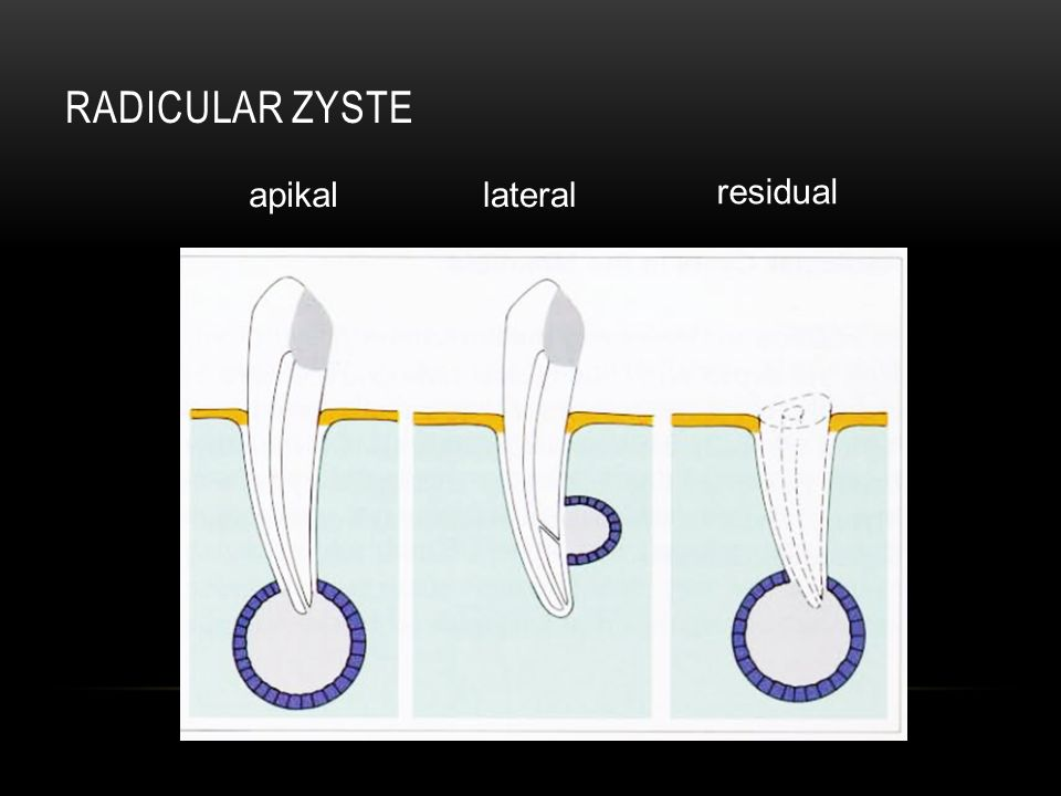 Radicular ZystE apikal lateral residual