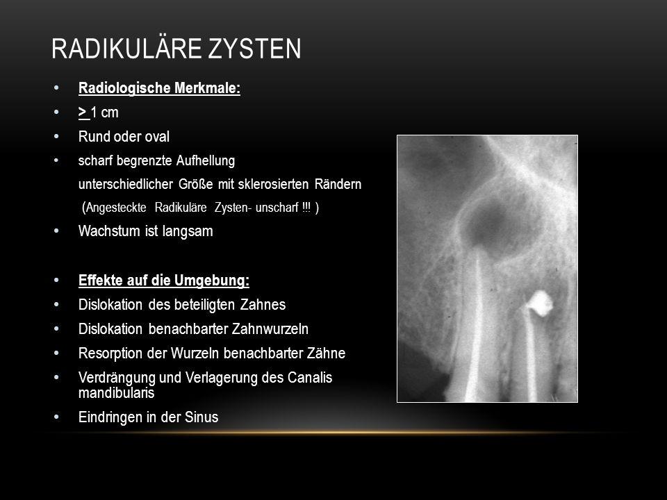 Radikuläre Zysten Radiologische Merkmale: > 1 cm Rund oder oval