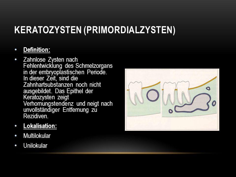 Keratozysten (Primordialzysten)