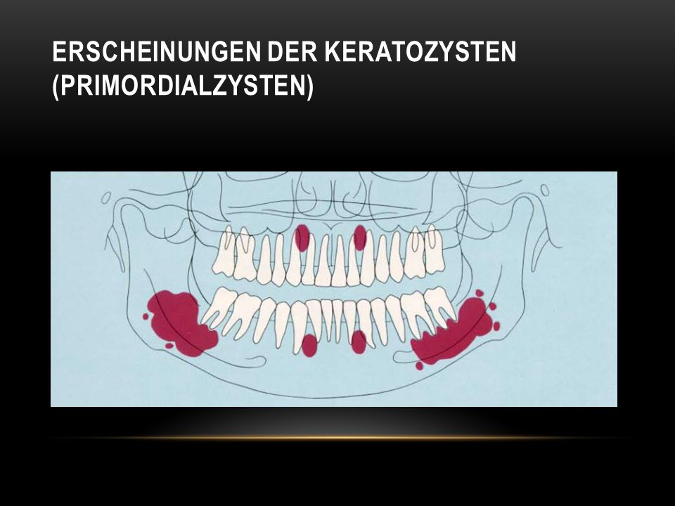 Erscheinungen der Keratozysten (Primordialzysten)